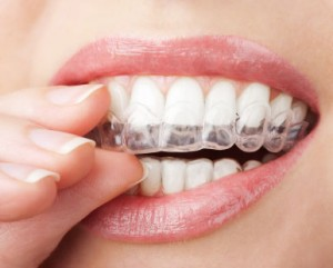 Invisalign braces information and pricing