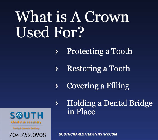 Dental Crowns, South Charlotte Dentistry, Dental Office Charlotte, Charlotte NC, Cosmetic Dentis