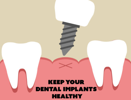 Bone Loss & Dental Implants – What You Need to Know