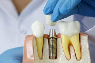 dental implant best dentist charlotte north carolina bone loss